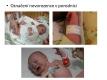 tehotenstvi-19